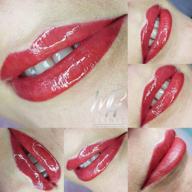 mg clinic aleksandrow lodzki makijaz permanentny (12)