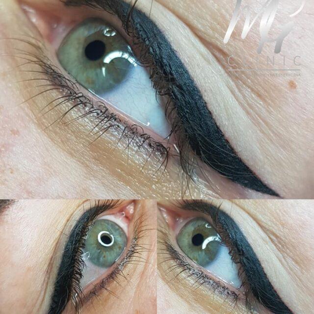 mg clinic aleksandrow lodzki makijaz permanentny (13)