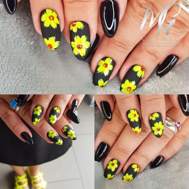 mg clinic aleksandrow lodzki manicure pedicure (10)